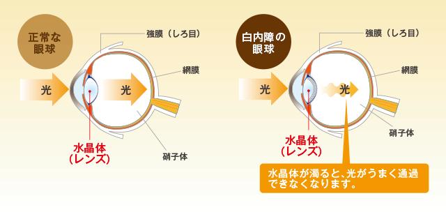 白内障の眼球と通常の眼球